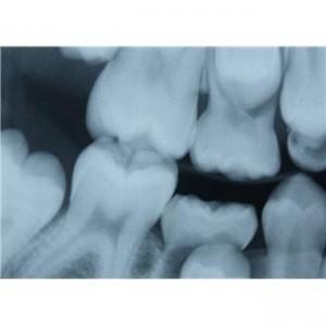 Можно ли беременным делать рентген при лечении зубов