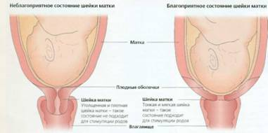 Шейка матки длинная при беременности