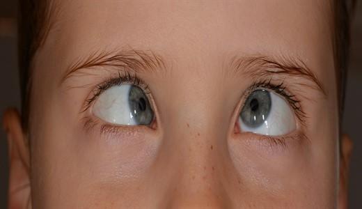 Косоглазие глаза у детей