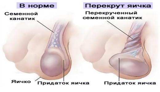 Сперма поступает из одного яичка