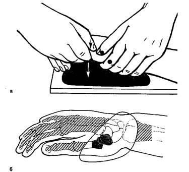 питание при субхондральном склерозе суставной поверхности лучезапястного сустава