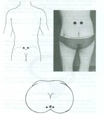 Акупунктурные точки для лечения простатита