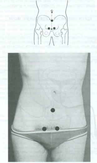 Акунптурные точки простата