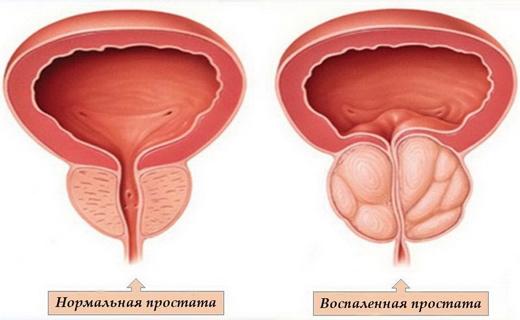 Акупунктурные точки при аденоме простаты