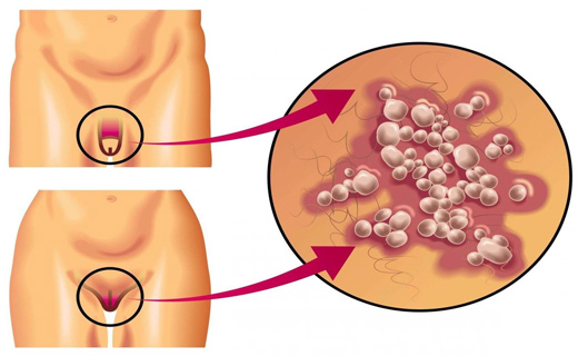 Трещинки при генитальном герпесе