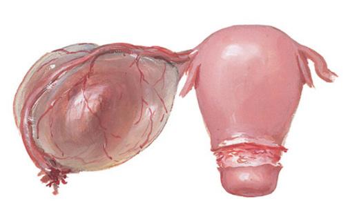 Киста яичника - лечение и симптомы, Как удалить кисту яичника