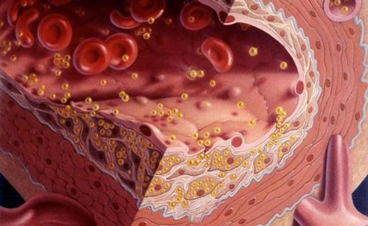 повышен холестерин причины