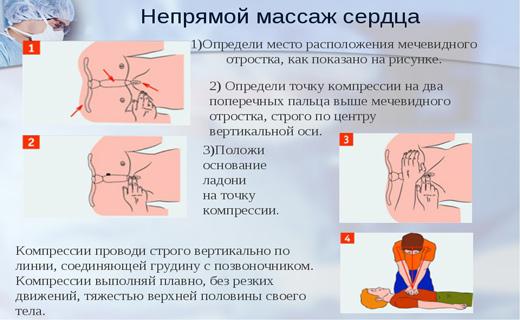 Проведение непрямого массажа сердца