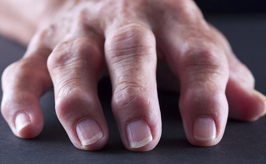 болезнь конечностей