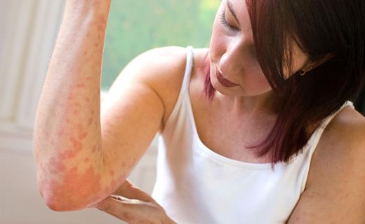 Симптомы болезней по пятнам на коже