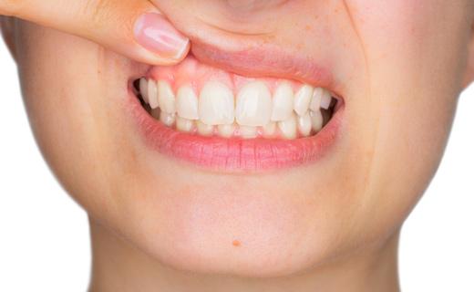 воспаленные губы