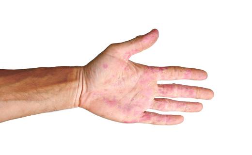Узловатая эритема: лечение народными средствами в домашних условиях, причины и симптомы