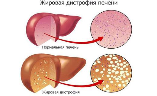 жировое перерождение печени