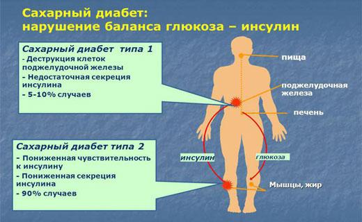 инсулин и диабет
