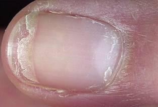 Расслоение ногтей на ногах