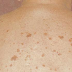 Белые пятна на коже после солнца как лечить