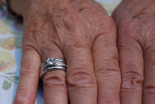 Как избавиться от возрастных пятен на руках в домашних условиях