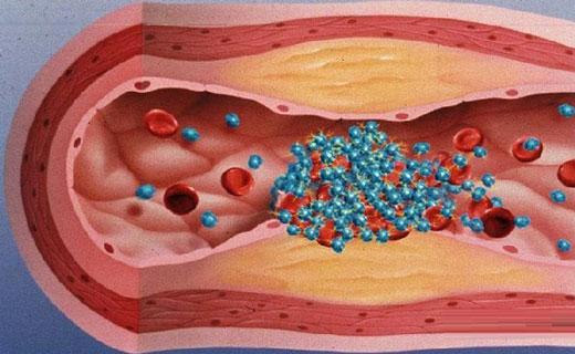 агрегация тромбоцитов с адреналином