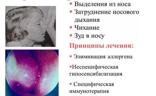 лергический насморк