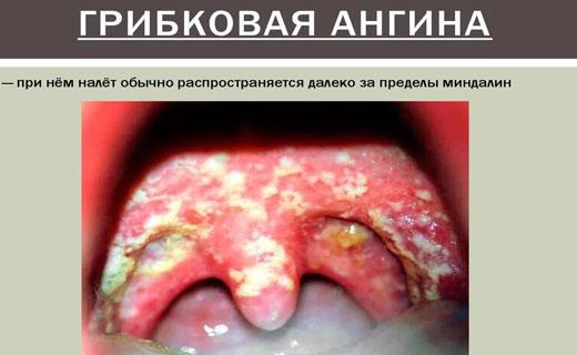 ангина лечение