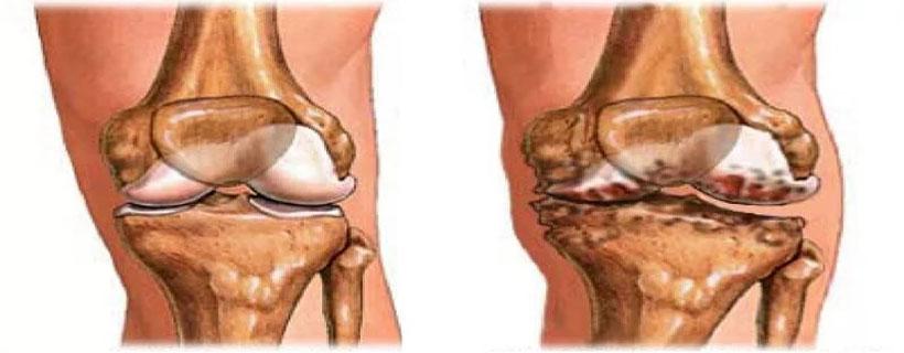 Препараты для лечение артрита коленного сустава биостимул прибор цена для суставов