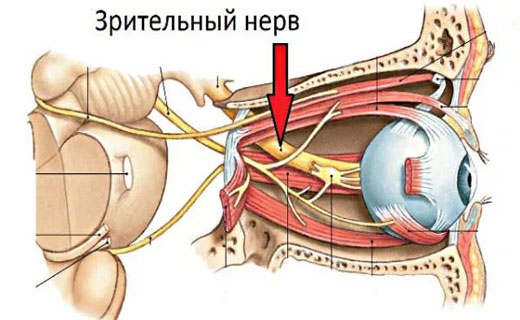 атрофия картинка зрительного нерва