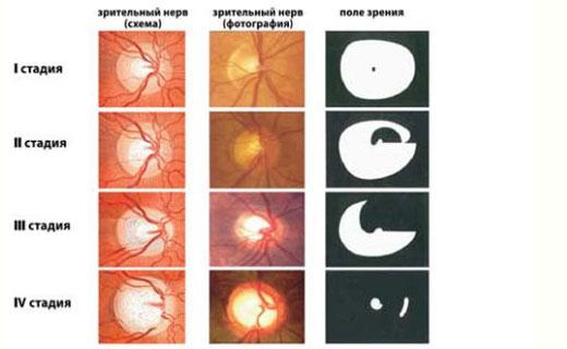 стадии атрофии при поражении зрительных нервов