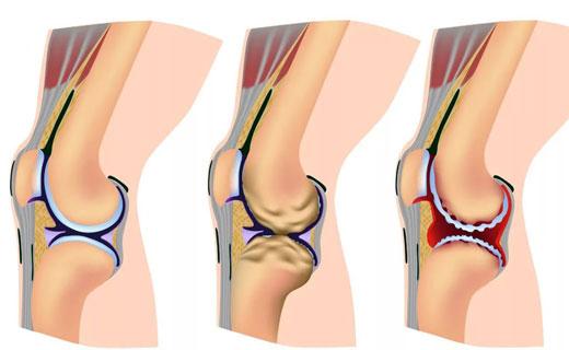 Артроз первого запястно - пястного сустава как вылечить повреждение суставной капсулы