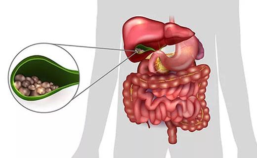 Симптомы и лечение желчного пузыря в домашних  845