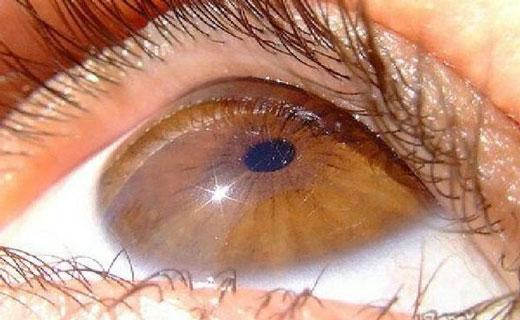 дистрофия картинка глаза