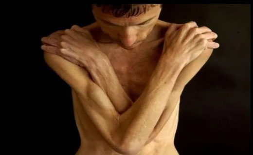 дистрофия тела