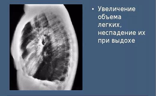 Эмфизематозные изменения в легких