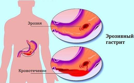 симптомы геморрагического гастрита