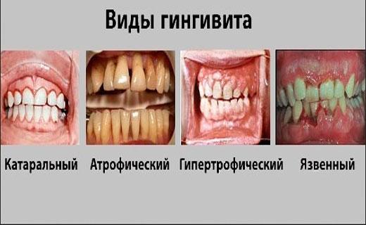 симптомы гингивитиа