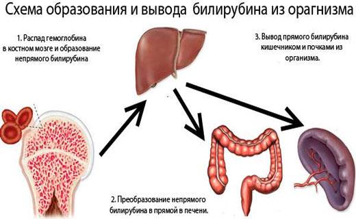 симптомы гипербилирубинемии