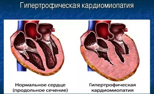 Гипертрофическая кардиомиопатия симптомы и признаки, Гипертрофическая кардиомиопатия лечение