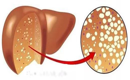 Лечится ли жировой гепатоз печени отзывы