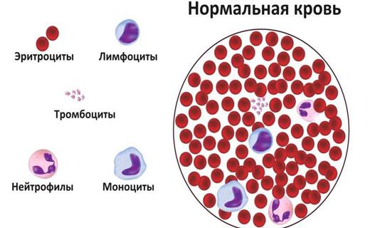 Агранулоцитоз симптомы