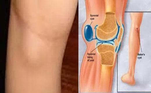Как убрать жидкость из коленного сустава без операции боль в тазобедреном суставе с отдачей в колено