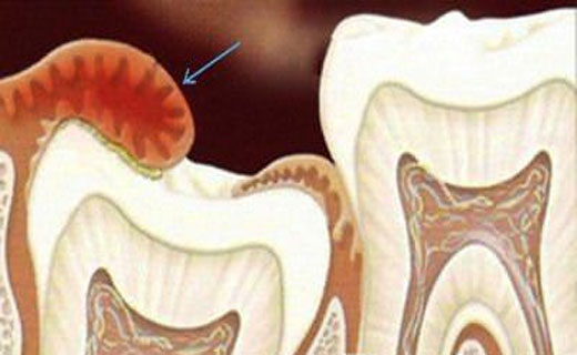 удаление капюшона зуба