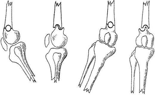 контрактура сустава