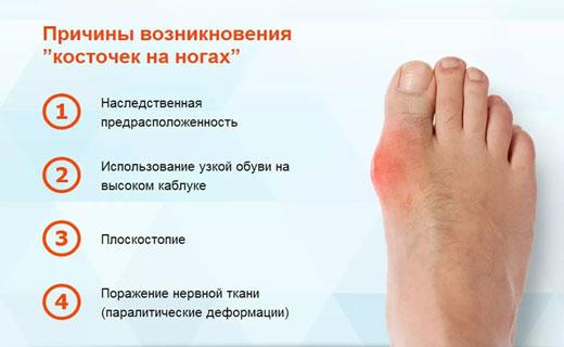 Как убрать косточку на ноге большого пальца в домашних условиях