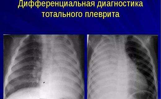 Плеврит симптомы и причины, Диагностика плеврита
