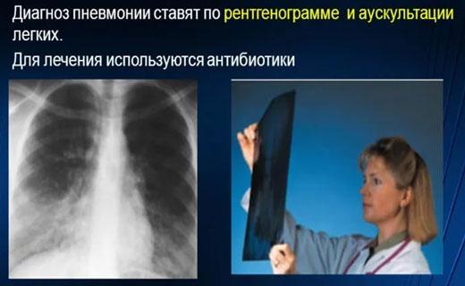 Как лечить воспаления лёгких в домашних условиях 963