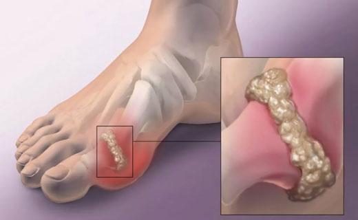 Диета и продукты при подагре ног