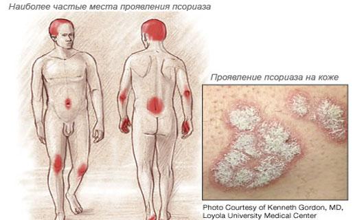 Половой псориаз лечение