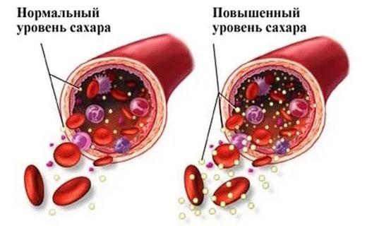повышенный сахар в крови