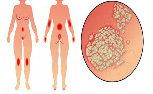 пустулезный псориаз симптомы