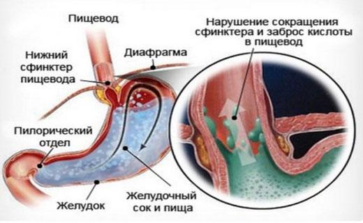 Признаки, симптомы, диагностика и лечение рефлюкс гастрита