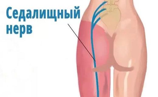Седалищный нерв лечение в домашних условиях